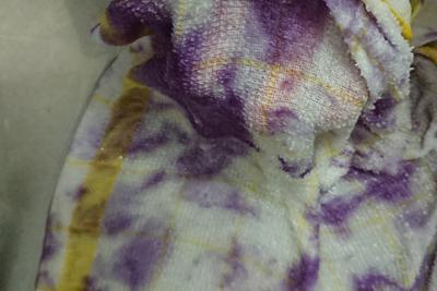 染まった布巾